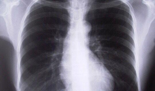 Рентгеновский снимок полученный во время прохождения пациентом флюорографии